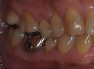 銀歯が噛むと痛い