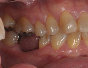 歯を抜いて1ッヶ月