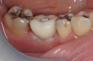 インプラント仮歯