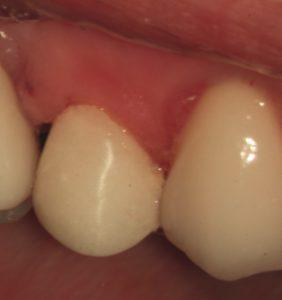 仮歯を外側から見たところ